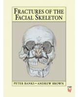 Fractures of the Facial Skeleton, 1e